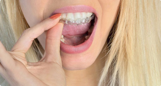 Woman with blonde hair placing a mouthguard in her mouth for teeth grinding