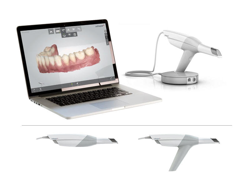 Digital Impressions - TMJ and Sleep Apnea Technology in Ottawa